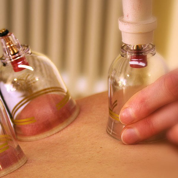 photo-cupping